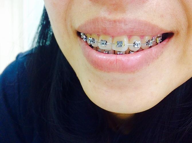 fija-rapida-ortodoncia-talavera
